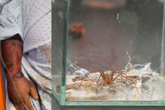 hombre muere picadura araña violinista